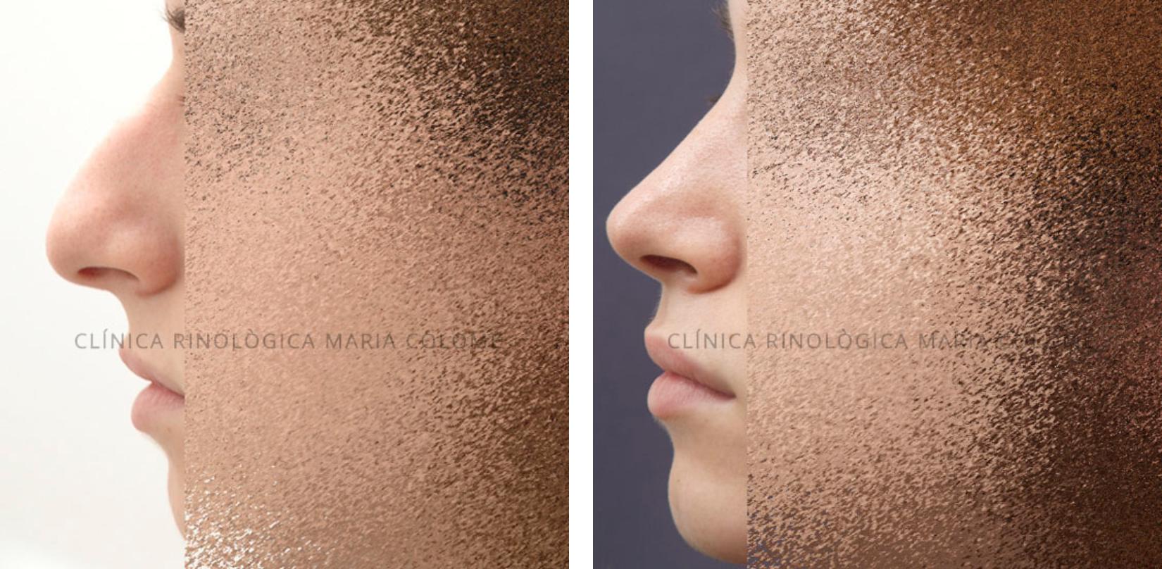 Clínica Rinològica Maria Colomé - Abans Després 01