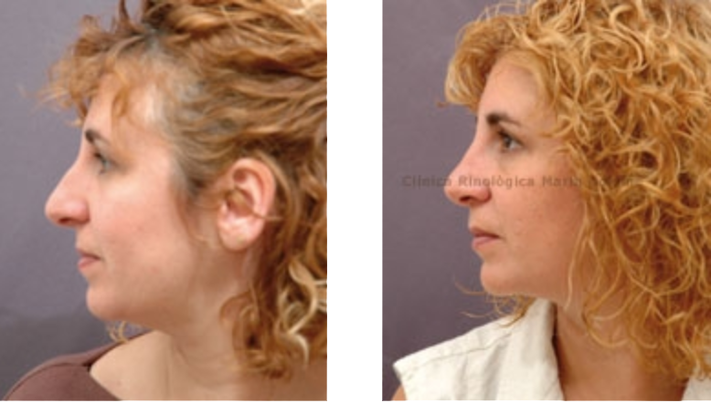 Clínica Rinològica Maria Colomé - Testimoni Cas 3 3